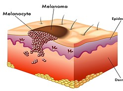 Tel Aviv University researchers unravel how melanoma spreads to distant organs